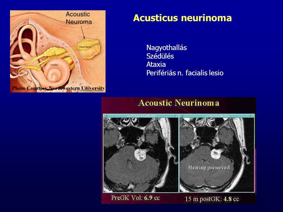 Acusticus neurinoma Nagyothallás Szédülés Ataxia