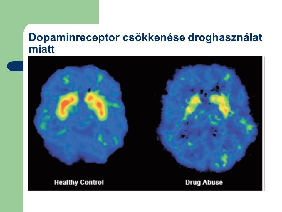 Dopaminreceptor csökkenése droghasználat miatt