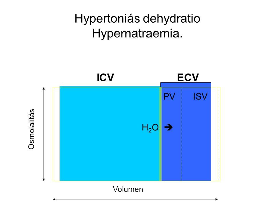 Hypertoniás dehydratio Hypernatraemia.
