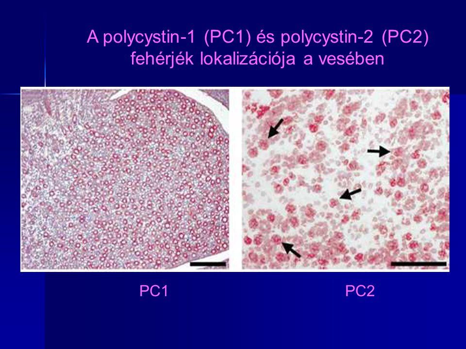 A polycystin-1 (PC1) és polycystin-2 (PC2) fehérjék lokalizációja a vesében
