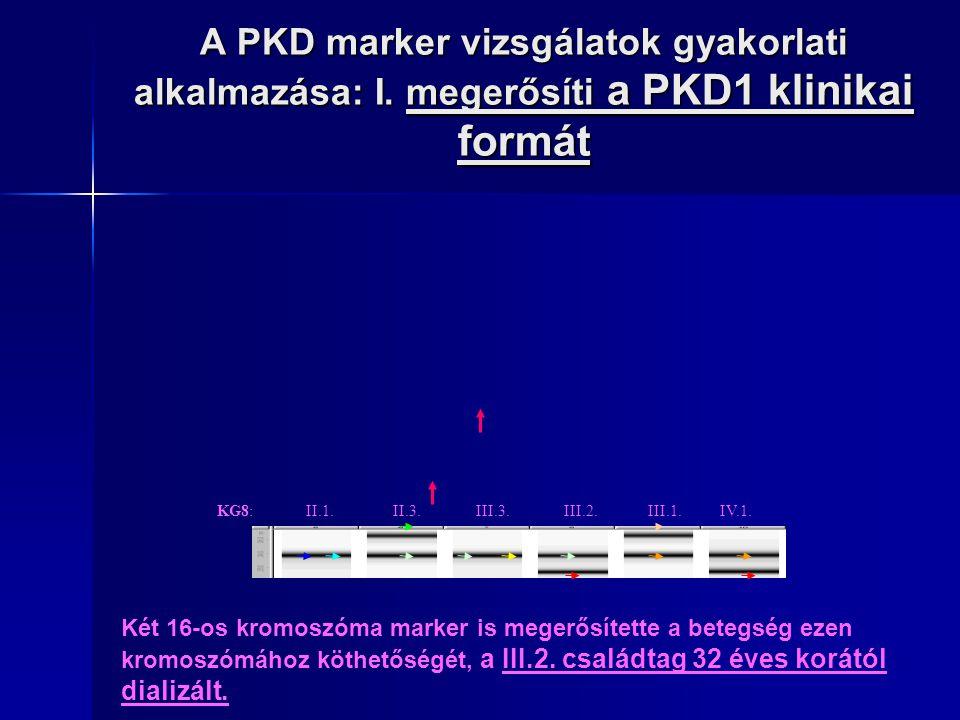 A PKD marker vizsgálatok gyakorlati alkalmazása: I