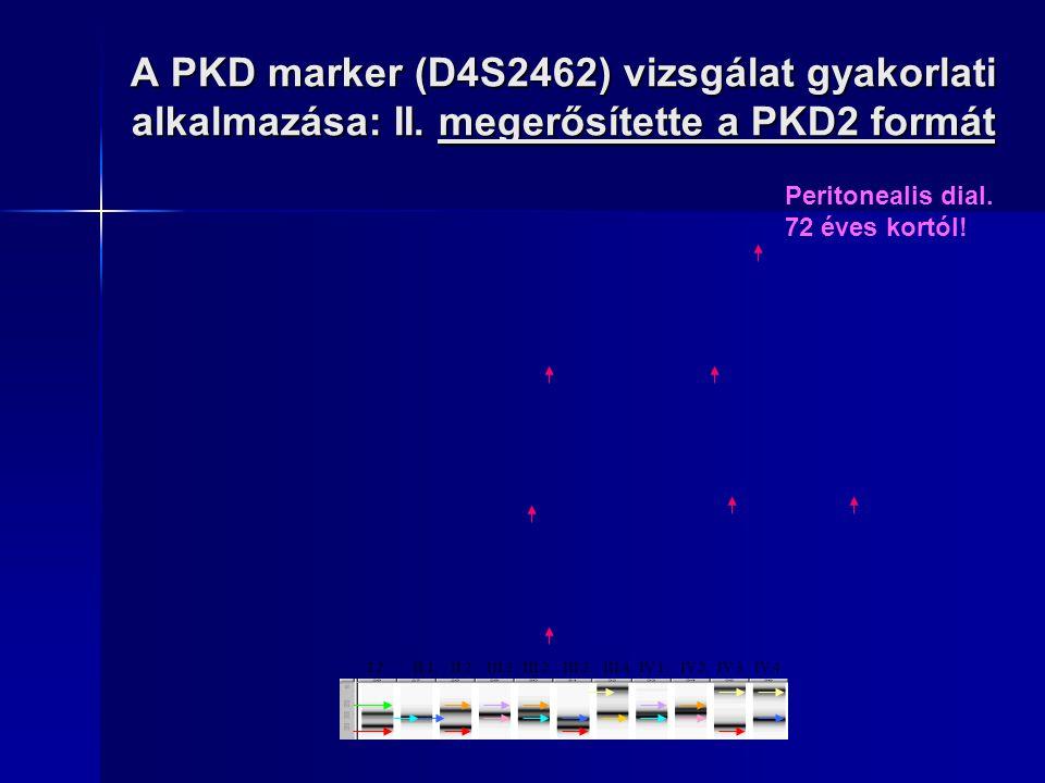 A PKD marker (D4S2462) vizsgálat gyakorlati alkalmazása: II