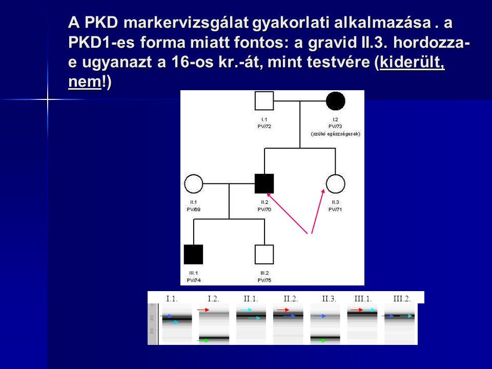 A PKD markervizsgálat gyakorlati alkalmazása
