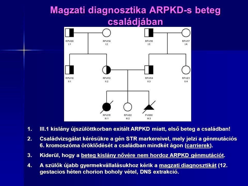 Magzati diagnosztika ARPKD-s beteg családjában