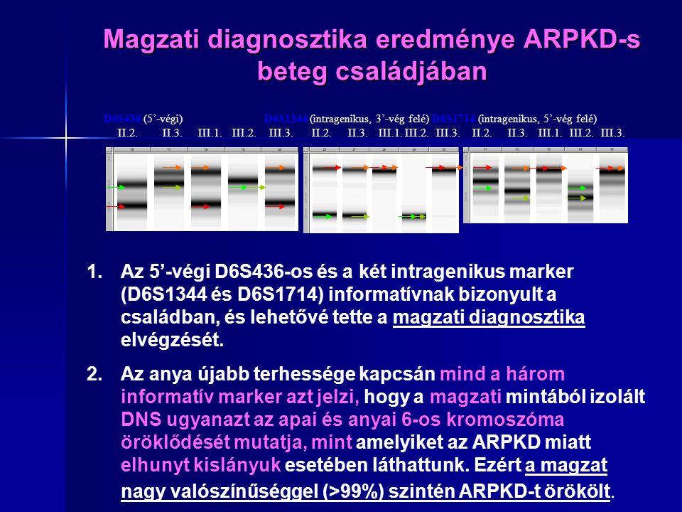 Magzati diagnosztika eredménye ARPKD-s beteg családjában