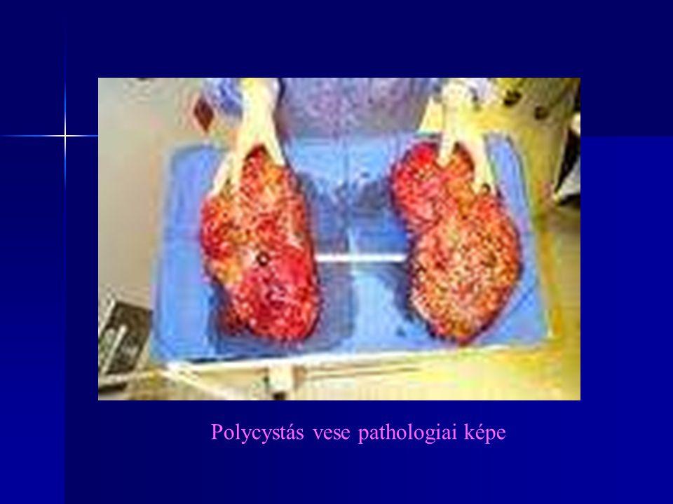 Polycystás vese pathologiai képe