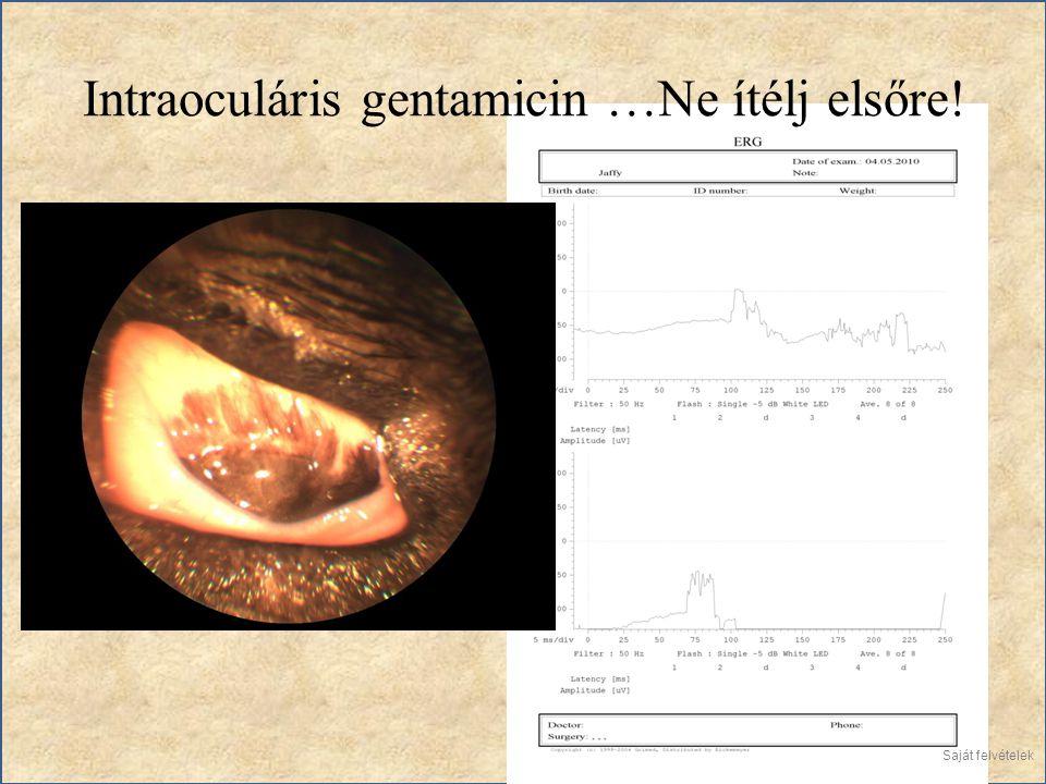 Intraoculáris gentamicin …Ne ítélj elsőre!