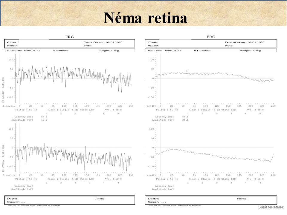 Néma retina Saját felvételek