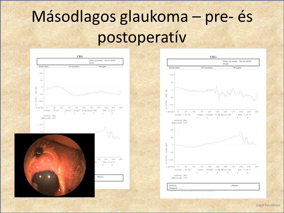 Másodlagos glaukoma – pre- és postoperatív