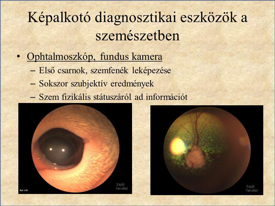 Képalkotó diagnosztikai eszközök a szemészetben