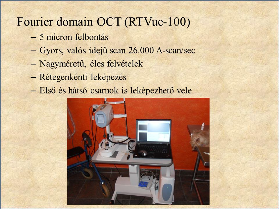 Fourier domain OCT (RTVue-100)