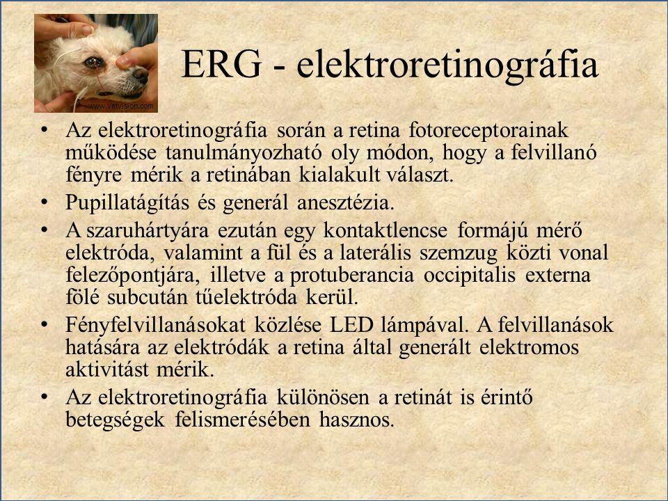ERG - elektroretinográfia