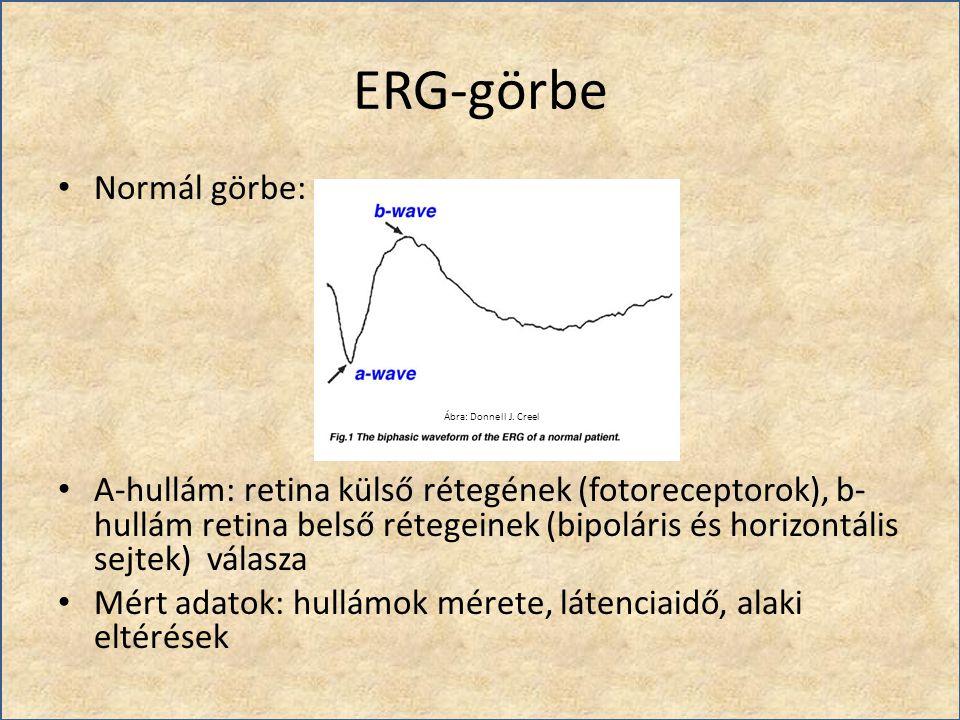 ERG-görbe Normál görbe: