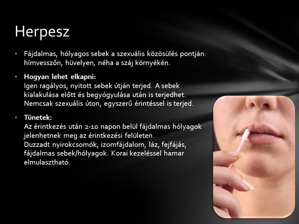Herpesz Fájdalmas, hólyagos sebek a szexuális közösülés pontján: hímvesszőn, hüvelyen, néha a száj környékén.