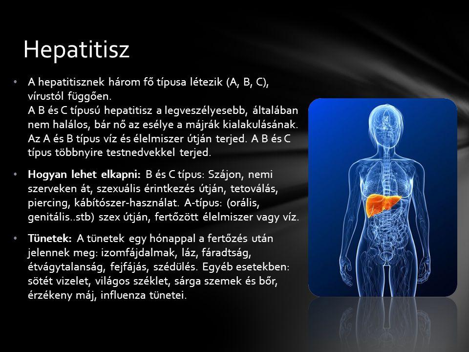 Hepatitisz