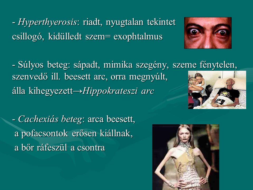 - Hyperthyerosis: riadt, nyugtalan tekintet csillogó, kidülledt szem= exophtalmus - Súlyos beteg: sápadt, mimika szegény, szeme fénytelen, szenvedő ill.