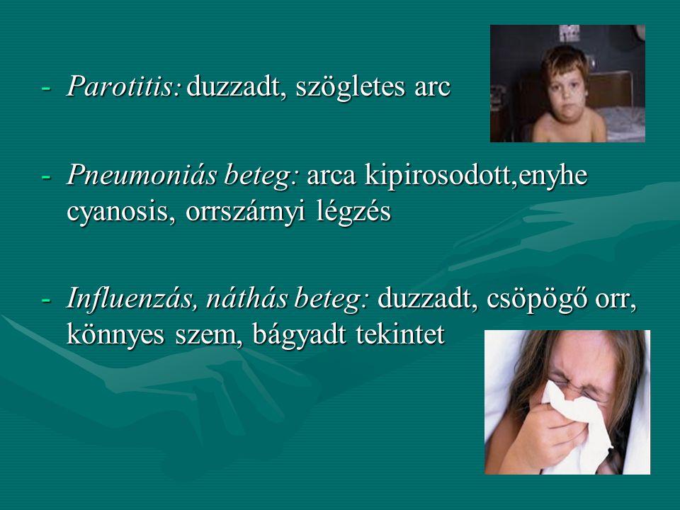 Parotitis: duzzadt, szögletes arc