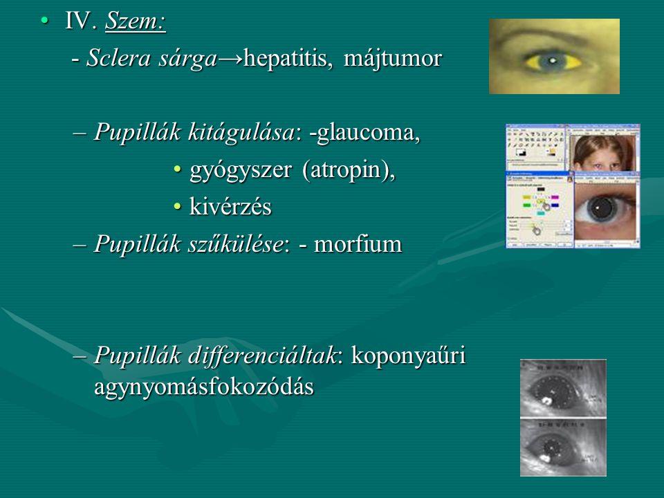 IV. Szem: - Sclera sárga→hepatitis, májtumor. Pupillák kitágulása: -glaucoma, gyógyszer (atropin),