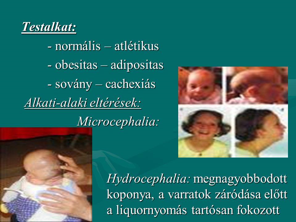Testalkat: - normális – atlétikus - obesitas – adipositas - sovány – cachexiás Alkati-alaki eltérések: Microcephalia: Hydrocephalia: megnagyobbodott koponya, a varratok záródása előtt a liquornyomás tartósan fokozott
