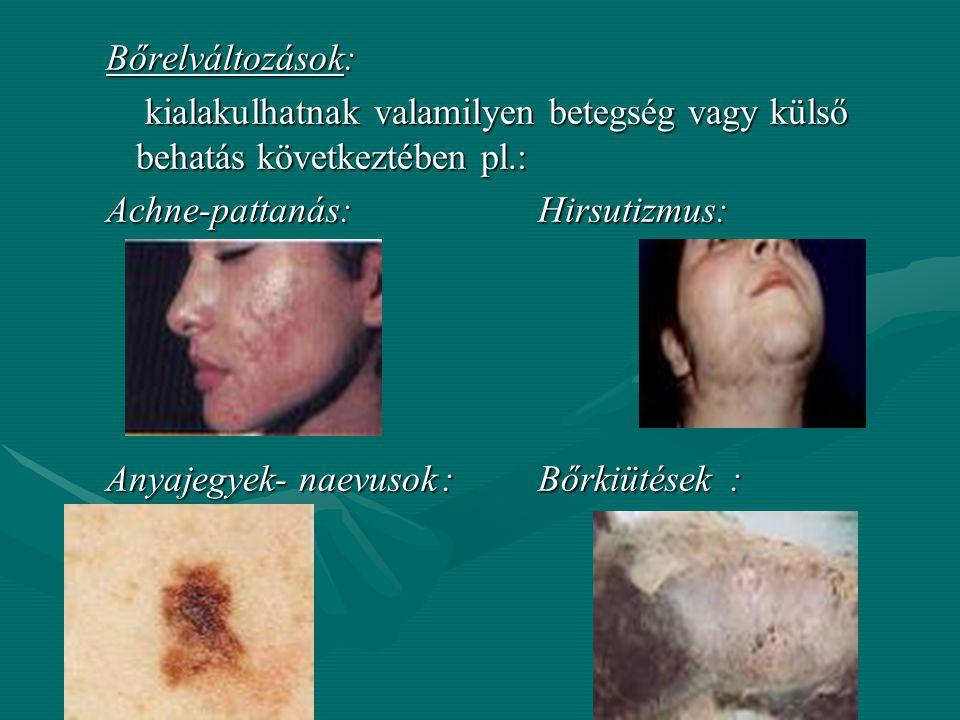 Bőrelváltozások: kialakulhatnak valamilyen betegség vagy külső behatás következtében pl.: Achne-pattanás: Hirsutizmus: