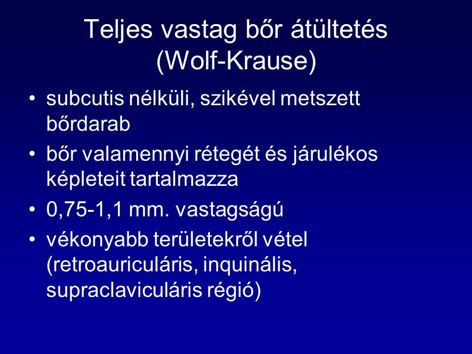 Teljes vastag bőr átültetés (Wolf-Krause)