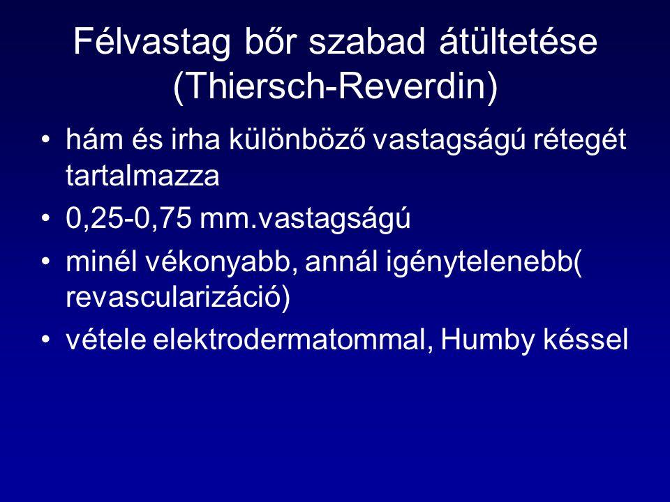 Félvastag bőr szabad átültetése (Thiersch-Reverdin)