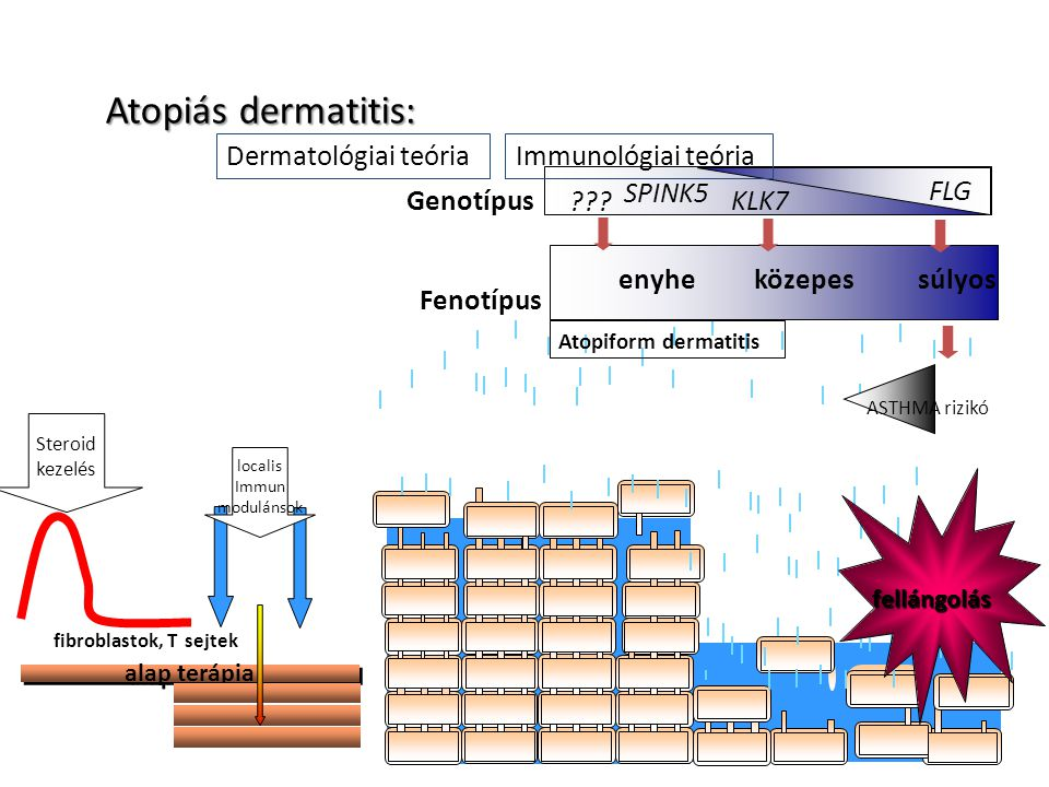 Atopiás dermatitis: Dermatológiai teória Immunológiai teória Fenotípus