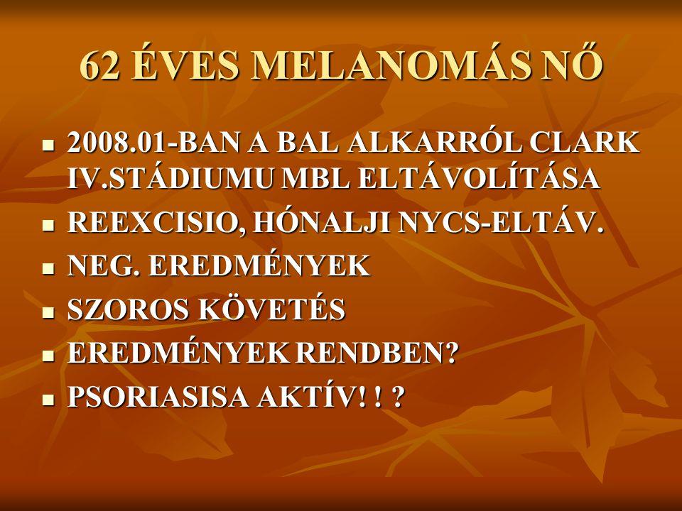 62 ÉVES MELANOMÁS NŐ 2008.01-BAN A BAL ALKARRÓL CLARK IV.STÁDIUMU MBL ELTÁVOLÍTÁSA. REEXCISIO, HÓNALJI NYCS-ELTÁV.