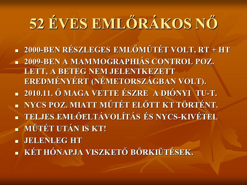 52 ÉVES EMLŐRÁKOS NŐ 2000-BEN RÉSZLEGES EMLŐMŰTÉT VOLT, RT + HT