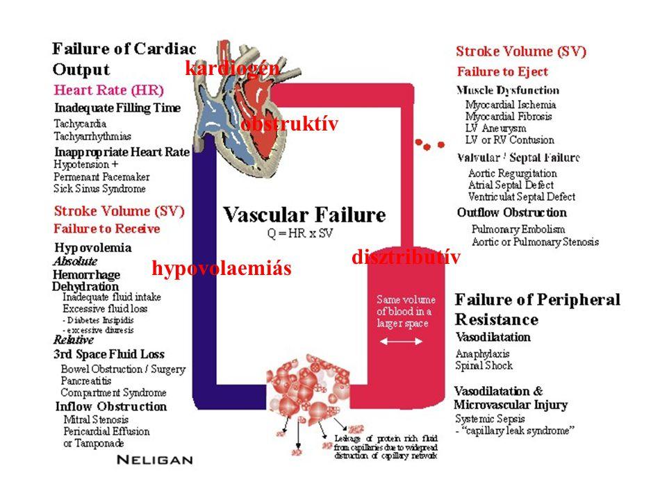 kardiogén obstruktív disztributív hypovolaemiás
