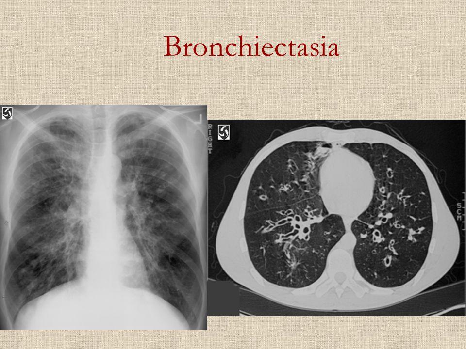 Bronchiectasia