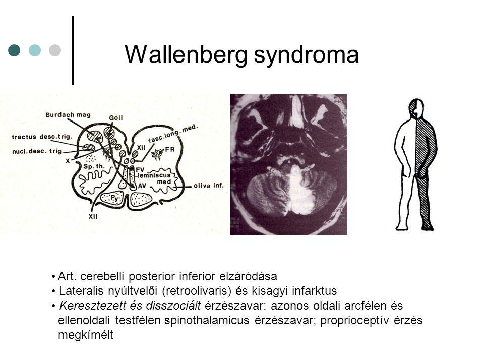 Wallenberg syndroma Art. cerebelli posterior inferior elzáródása