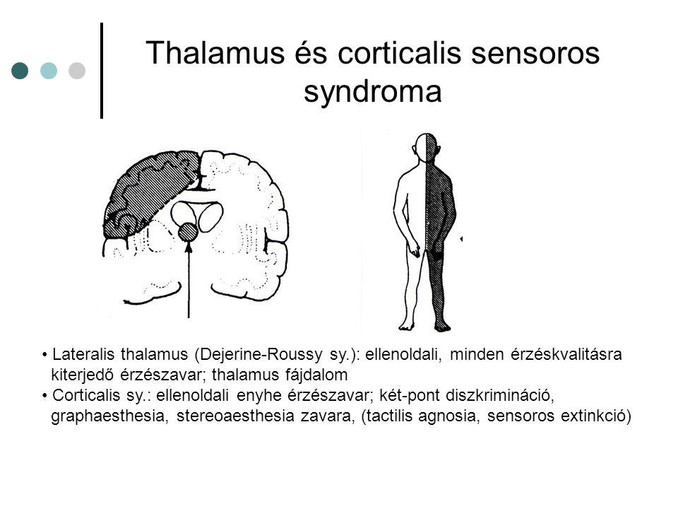 Thalamus és corticalis sensoros syndroma