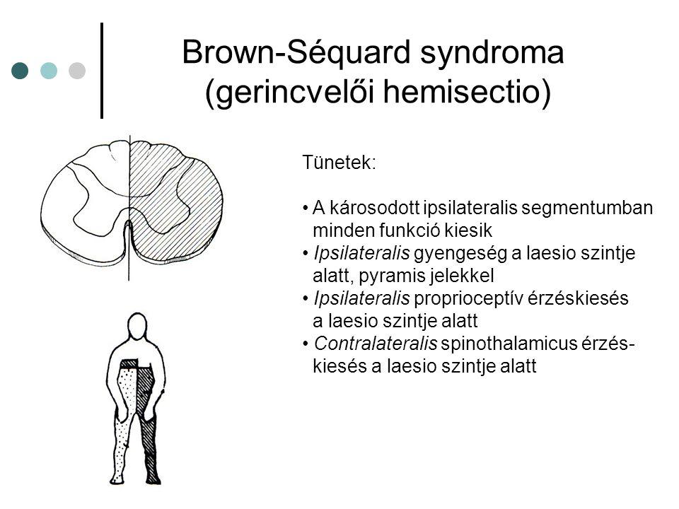 Brown-Séquard syndroma (gerincvelői hemisectio)