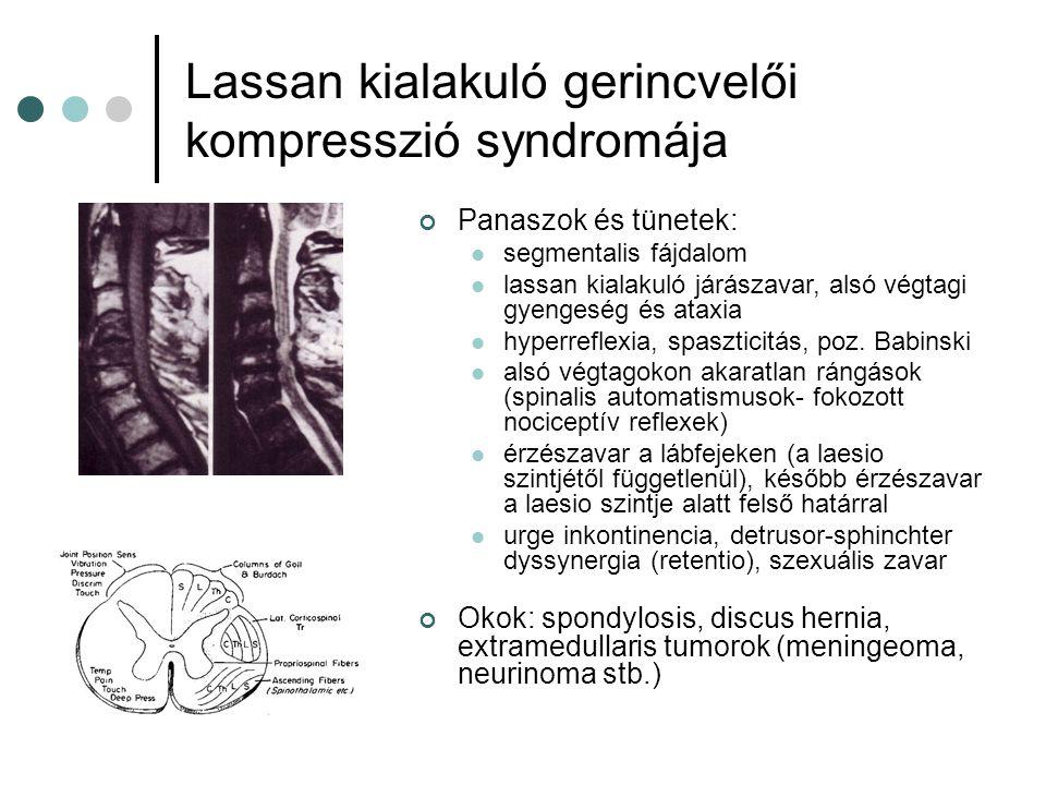 Lassan kialakuló gerincvelői kompresszió syndromája