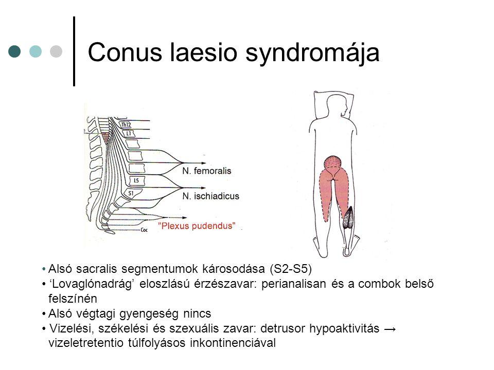 Conus laesio syndromája