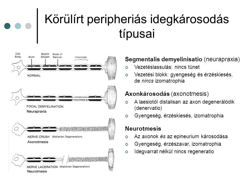 Körülírt peripheriás idegkárosodás típusai