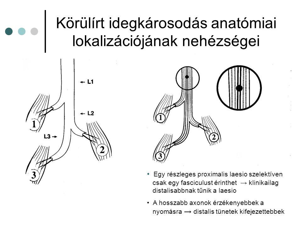 Körülírt idegkárosodás anatómiai lokalizációjának nehézségei