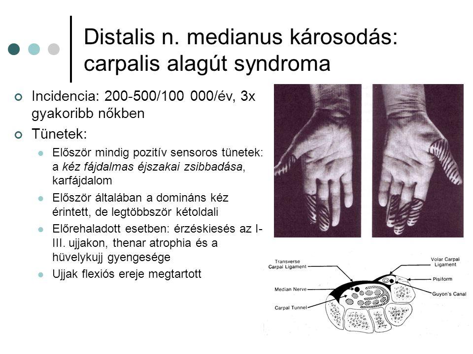 Distalis n. medianus károsodás: carpalis alagút syndroma