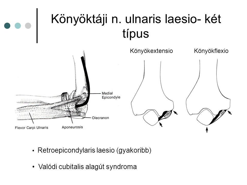 Könyöktáji n. ulnaris laesio- két típus