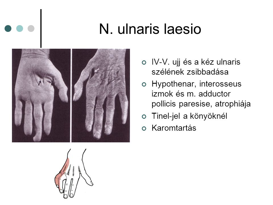 N. ulnaris laesio IV-V. ujj és a kéz ulnaris szélének zsibbadása