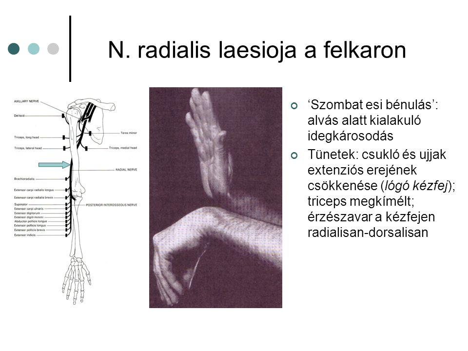 N. radialis laesioja a felkaron