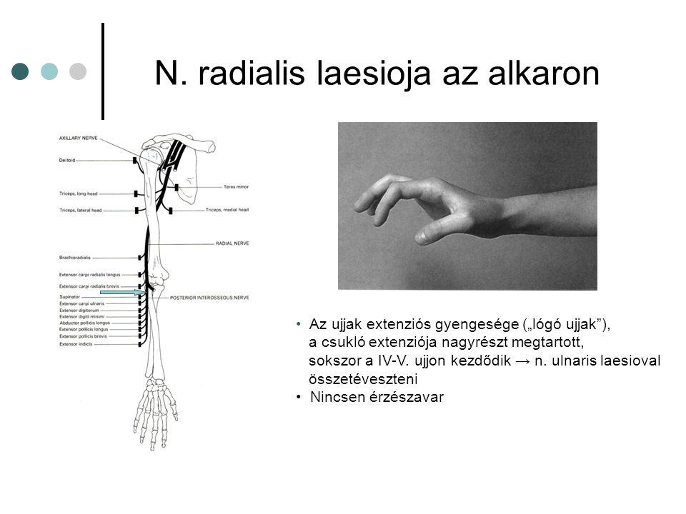 N. radialis laesioja az alkaron