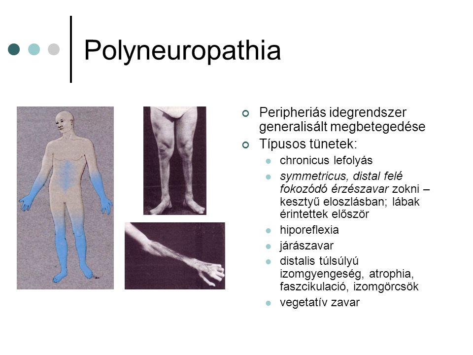 Polyneuropathia Peripheriás idegrendszer generalisált megbetegedése