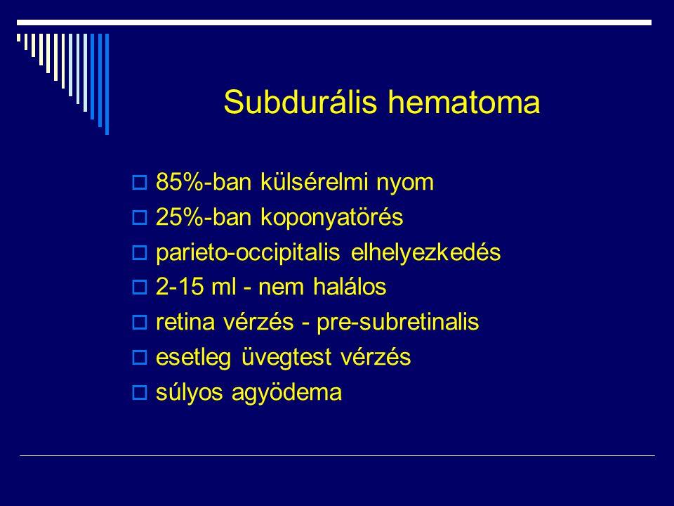 Subdurális hematoma 85%-ban külsérelmi nyom 25%-ban koponyatörés