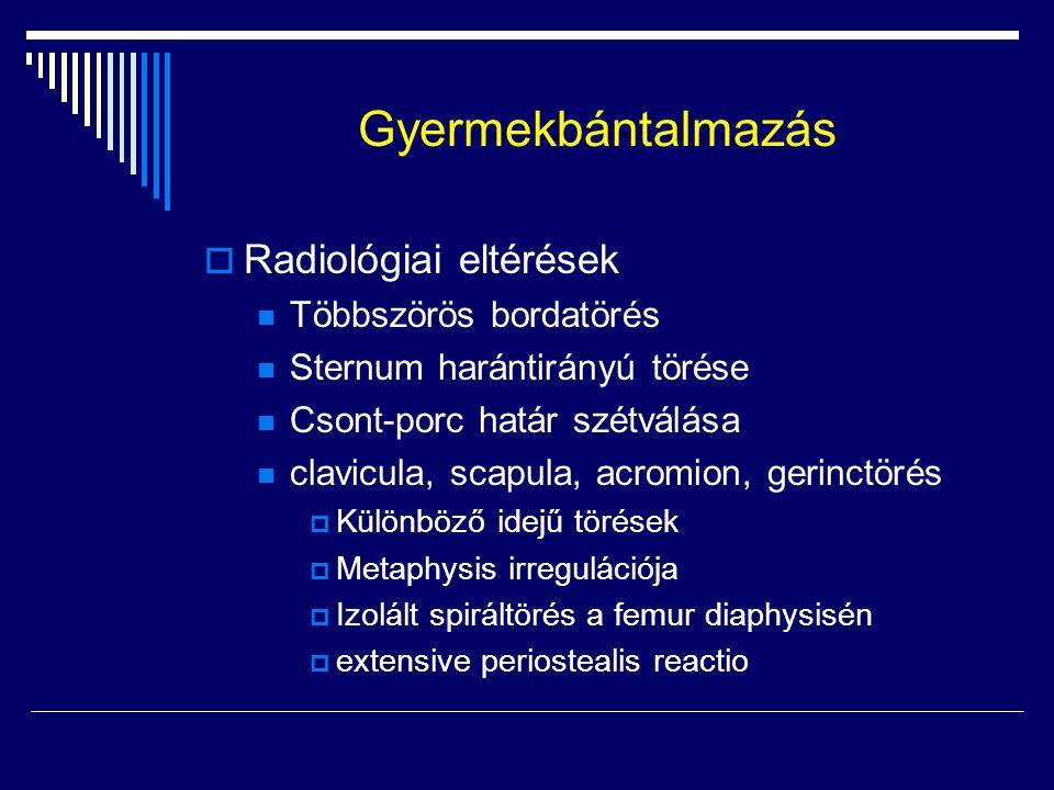 Gyermekbántalmazás Radiológiai eltérések Többszörös bordatörés