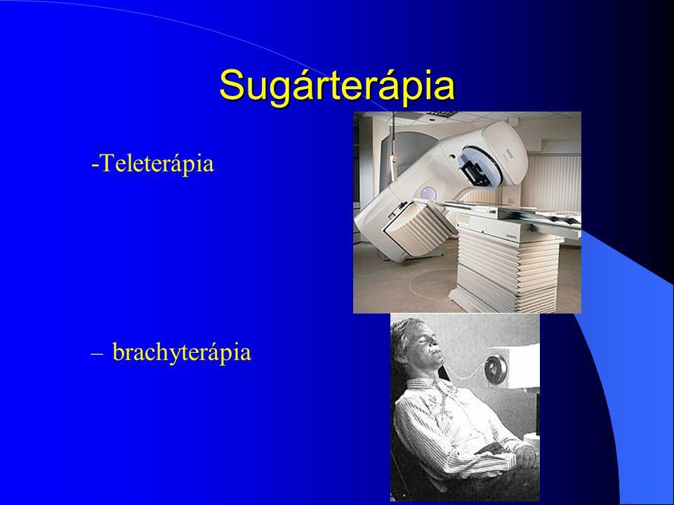 Sugárterápia -Teleterápia brachyterápia