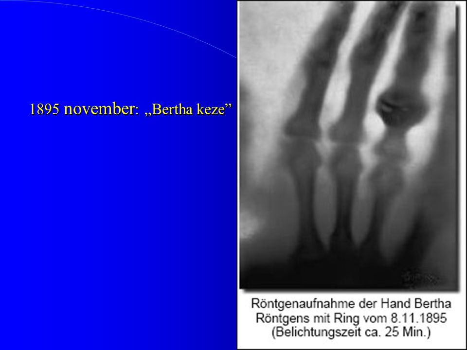 "1895 november: ""Bertha keze"