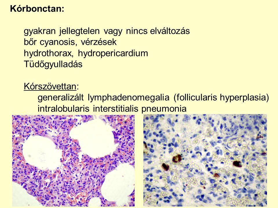 Kórbonctan: gyakran jellegtelen vagy nincs elváltozás. bőr cyanosis, vérzések. hydrothorax, hydropericardium.