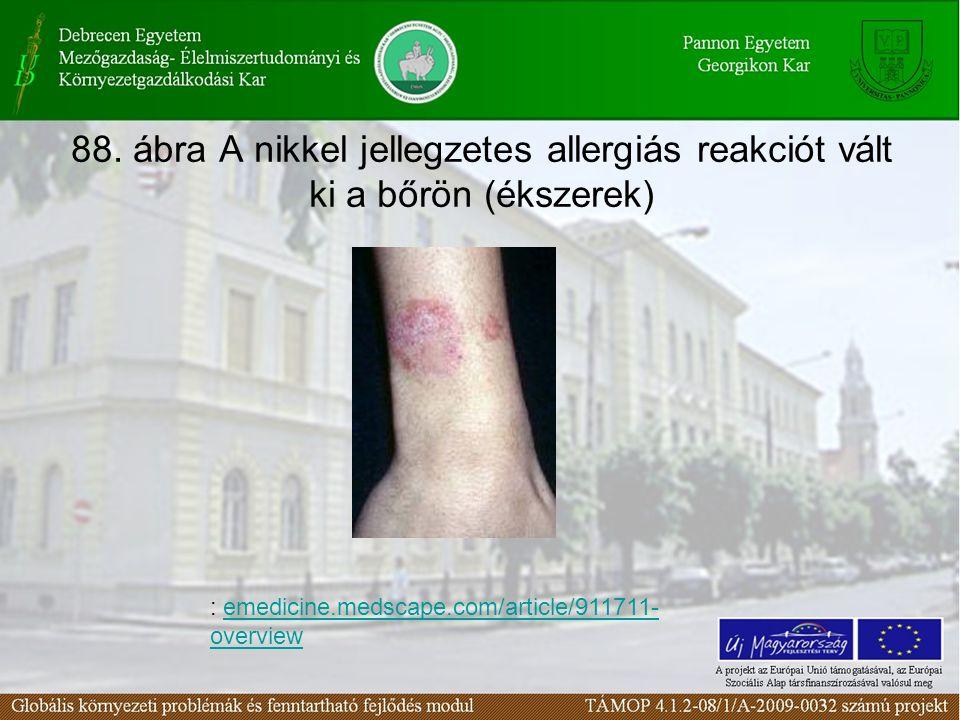 88. ábra A nikkel jellegzetes allergiás reakciót vált ki a bőrön (ékszerek)